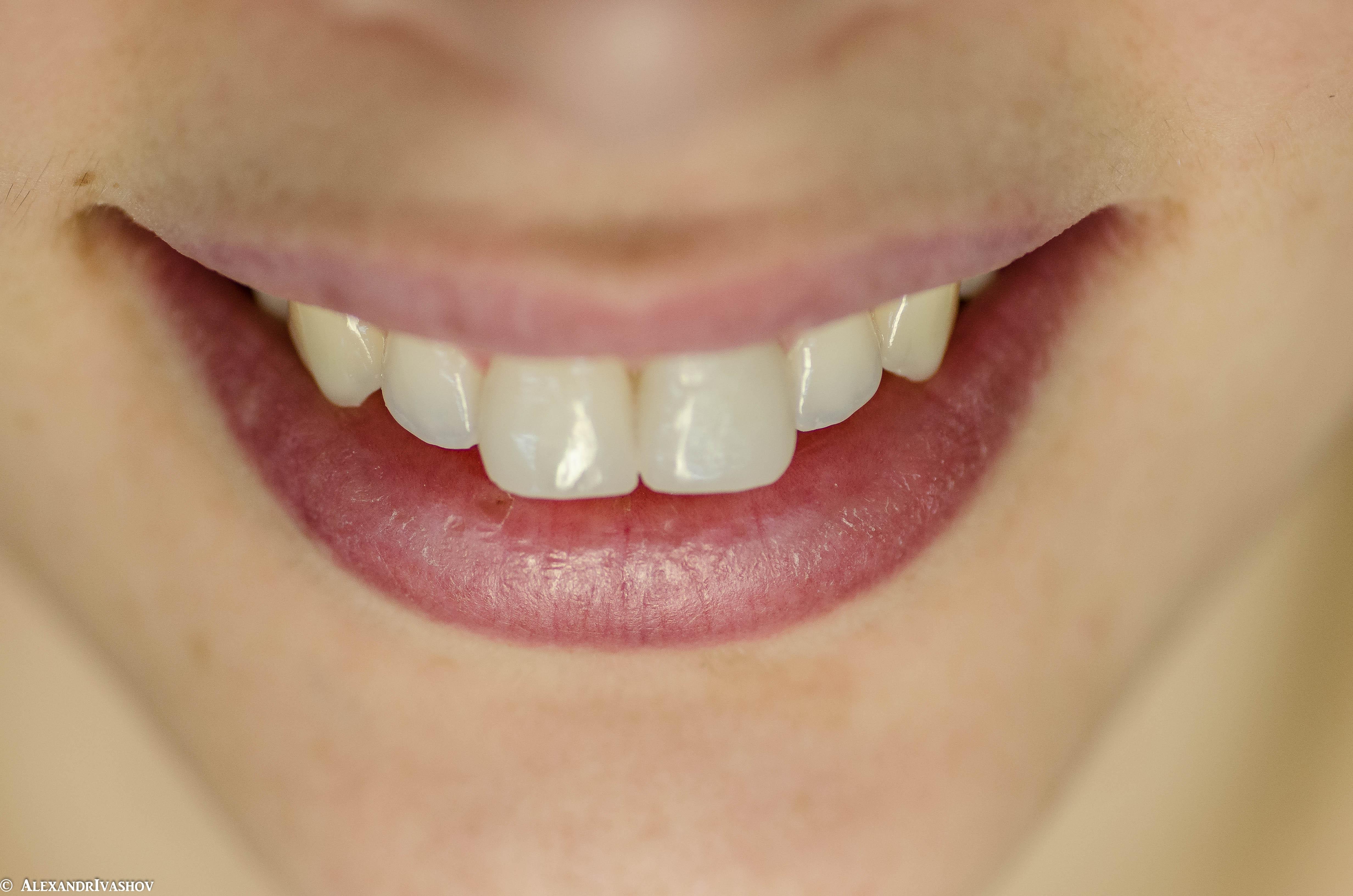 зубы после снятия виниров фото